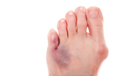 Bunion foot Treatment at Advanced Foot and Ankle Specialists